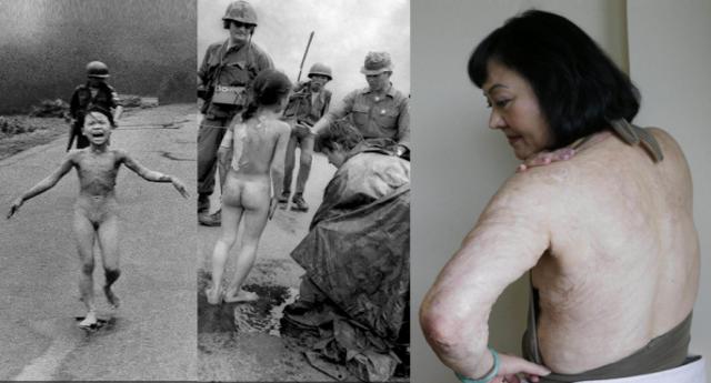 Per non dimenticare: Kim Phúc ieri ed oggi. La bambina colpita dal Napalm mentre gli Americani esportavano la democrazia in Vietnam